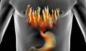 Причины возникновения изжоги и методы её устранения