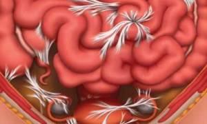 Признаки появления и способы лечения опущения кишечника
