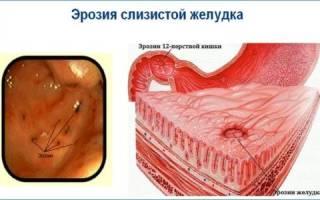 Симптомы и лечение эрозии желудка препаратами и диетическим питанием