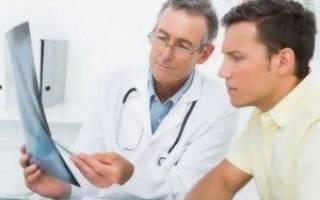 Признаки и лечение эрозивного рефлюкс-эзофагита