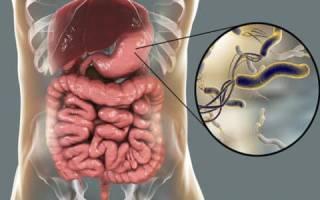 Бактерия хеликобактер пилори: нормы, какие анализы сдают на их наличие