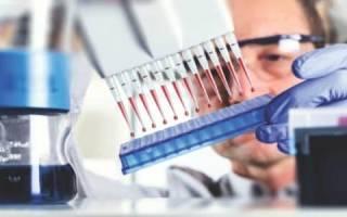 Как определяется диастаза крови и каковы причины повышения ее уровня?