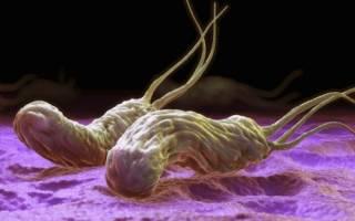 Симптомы и особенности лечения гастрита