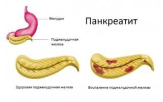 С чем связано появление поноса при панкреатите?
