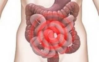 Причины и лечение заболевания симптом раздраженного кишечника