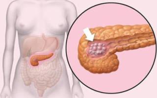 Что собой представляет и как лечится стеатоз поджелудочной железы?